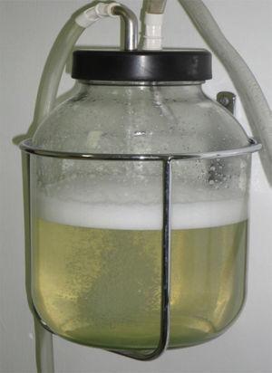 Características cetrinas del líquido intraquístico. Se obtuvieron 11 l.