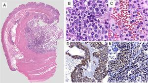 A) Imagen panorámica de lesión intramural. B y C) Células redondas, uniformes con núcleos centrales, ovales, cromatina granular, homogénea, nucléolo pequeño de citoplasma delimitado claro y eosinófilo. D) Inmunohistoquímica positiva para actina de músculo liso. E) Inmunohistoquímica positiva para sinaptofisina en células glómicas perivasculares.