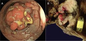 A) Colonoscopia en la cual se observa la presencia de pólipo de gran tamaño. B) Pieza quirúrgica que muestra el corte de la luz del intestino con incontables pólipos y cápsula endoscópica obstruyendo su luz en una zona de estenosis en el íleon.