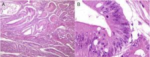Estudio histopatológico de la lesión. A) Fotomicrografía a bajo aumento&#59; se observan numerosos pólipos de Peutz-Jeghers que presentan de manera característica gruesas bandas de músculo liso entre los islotes de tejido epitelial. B) Fotomicrografía a gran aumento del pólipo de mayor tamaño que presenta displasia de alto grado