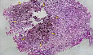 Mucosa gástrica oxíntica. Infiltración parcial con pérdida de arquitectura de foveolas y glándulas por células neoplásicas con patrón difuso, discohesivo.