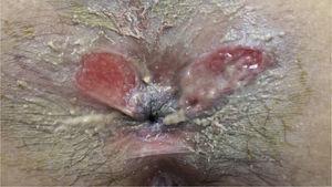 Úlceras perianales de la paciente de localización atípica.