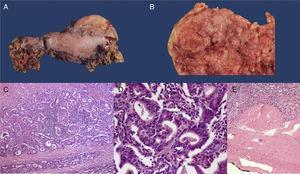A) Pieza quirúrgica de gastrectomía total. B) Corte de la pieza quirúrgica que demuestra tumoración fungante en tubo gástrico resecado (5×). C) Corte histológico con tinción H&E que demuestra adenocarcinoma invasivo (20×). D) Imagen en alto poder (100×) con H&E que demuestra formación de túbulos compatible con adenocarcinoma gástrico tipo intestinal. E) Montaje panorámico en H&E que demuestra que el tumor llega a la subserosa sin invadirla (T2).
