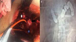 A) Imagen intraoperatoria de paciente n.° 4, el cual se presentó con colangitis severa. Se visualiza vesícula biliar escleroatrófica (flecha blanca), la cual estaba adherida a trayecto fistuloso complejo (flecha negra). Dentro se colocó sonda Nelaton y este, a su vez, comunicaba con primera porción de duodeno (flecha azul). B) Fistulografía por sonda Nelaton del mismo paciente utilizando medio de contraste hidrosoluble, realizada a las 24h del procedimiento quirúrgico: se observa la inserción de la sonda que pasa por el trayecto fistuloso, adherido a primera porción duodenal, que llega hasta la tercera y cuarta porciones. Tras la administración de medio de contraste, se visualiza unión duodeno-yeyunal hasta asa fija de Treitz&#59; por reflujo del medio de contraste se llena rodilla y segunda porción del duodeno.