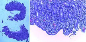 Biopsias del intestino delgado mostrando atrofia vellositaria e infiltración linfocítica crónica de la lámina propia (hematoxilina-eosina ×15).