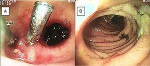 A) Divertículo de íleon con coágulo adherido y vaso visible con 2 hemoclips. B) Úlcera benigna en íleon.