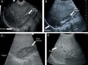 A) Imagen de ultrasonido que demuestra ecogenicidad conservada en hígado y riñón derecho. B) Imagen de ultrasonido que demuestra discreto incremento de la ecogenicidad hepática (esteatohepatitis leve). C) Imagen de ultrasonido que demuestra importante incremento en la brillantez hepática (esteatohepatitis moderada). D) Imagen de ultrasonido que demuestra hígado ecogénico. No se identifican vasos porta (esteatohepatitis grave).