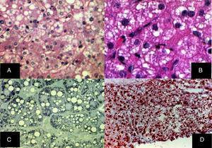 A) Esteatosis microvesicular difusa, se aprecian múltiples vacuolas claras dentro del citoplasma de los hepatocitos (H&E, aumento original x 400). B) Las vacuolas miden alrededor de una micra de diámetro y no desplazan al núcleo (H&E, aumento original x 400). C) Cortes semifinos que muestran la naturaleza microvesicular de la esteatosis, la cual se aprecia en prácticamente todos los hepatocitos (azul de toluidina, aumento original x 400). D) Múltiples gotas de grasas neutras se revelan en todo el lobulillo hepático (rojo oleoso, aumento original x 200).