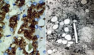 A) En esta reacción de inmunohistoquímica se observa que las gotas de lípidos se encuentran en lisosomas (catepsina D, aumento original x 400). B) En esta fotomicrografía se aprecia que los lípidos están rodeados de una unidad simple de membrana que revela su naturaleza lisosomal; se aprecian también cristales de colesterol (microscopía electrónica, aumento original x 2,000).