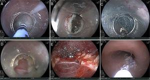 Técnica del procedimiento: A) Inyección. B) Incisión. C) Túnel submucoso. D y E) Miotomía completa. F) Cierre de incisión con cianoacrilato.