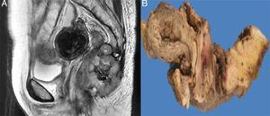 RMN abdómino-pélvica. A) Neo formación dependiente del recto inferior con extensión a región anal que involucra músculos del periné, y ambos glúteos. B) Corte sagital espécimen quirúrgico.