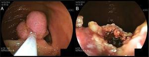 A) Pólipo en intestino delgado previo a resección. B) Posterior a resección.