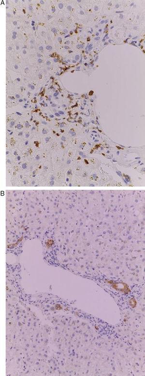 A) Espacio porta con infiltrado por linfocitos CD2+. Inmunohistoquímica 200×. B) Inmunohistoquímica que demuestra los conductos biliares CK7+.