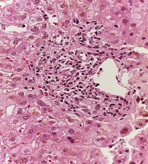 Biopsia hepática con hematoxilina-eosina. Espacio porta que muestra daño a conductos biliares e infiltrado por linfocitos. Los hepatocitos periportales con citoplasma de aspecto «activado».