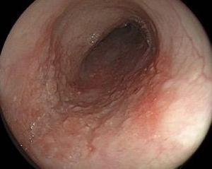 Endoscopia con luz blanca de lesión esofágica temprana.