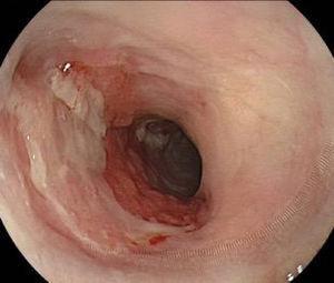 Control endoscópico posterior a DES (30 días). Paciente recibió terapia profiláctica de estenosis con corticoides oral por 4 semanas.
