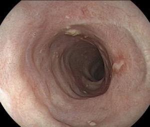 Control endoscópico en 90 días, sin estenosis o lesión residual luego de terapia con corticoides.