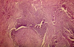 Fotomicrografía a pequeño aumento (H&E), con estroma y glándulas endometriales.