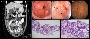 A) Ascitis, engrosamiento difuso y concéntrico de intestino delgado. B,C)EDS con cambios sugestivos de esofagitis eosinofílica y duodenitis. D)Cápsula endoscópica: mucosa con edema, eritema que produce engrosamiento de vellosidades. E)Íleon (H&E, 100×). Mucosa ileal conservada con vellosidades ligeramente ensanchadas y aplanadas con infiltrado inflamatorio linfocitario, presencia de mayor número de eosinófilos y criptas con algunas ramificaciones. F)Íleon (H&E, 400×). Mucosa ileal con mayor aumento donde se observan linfocitos y eosinófilos en mayor proporción de lo usual en la lámina propia, los cuales hacen exocitosis al epitelio superficial y a las criptas.
