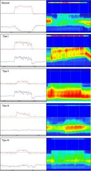 Clasificación de la defecación disinérgica de acuerdo con el patrón manométrico. Del lado izquierdo se representan los trazos de manometría anorrectal convencional y del lado derecho los de manometría de alta resolución. La línea roja en la manometría convencional representa la presión intrarrectal y la línea azul la presión anal durante la maniobra de pujo defecatorio. Como se observa, los tipos I y III se caracterizan por contracción paradójica o ausencia de relajación del esfínter anal, mientras que los tipos II y IV se caracterizan por debilidad o ausencia en la propulsión rectal. En los trazos de manometría de alta resolución se aprecian 2 bandas de color, una superior (rectal) delgada y una inferior gruesa (anal), donde los colores más intensos representan mayor presión y los colores más tenues menor presión.