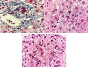 Tinción de Masson a 100X, se observa un infiltrado inflamatorio mononuclear en espacio porta y daño de conductos biliares interlobulillares caracterizado por alteración en la polaridad de los núcleos, irregularidad de los contornos nucleares e hipercromasia a). Tinción de hematoxilina-eosina a 100X, se observa una hepatitis crónica colestásica con actividad lobulillar por la presencia de escasas células inflamatorias mononucleares y hepatocitos apoptóticos b), así como colestasis intracitoplásmica y degeneración balonoide de los hepatocitos c).