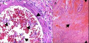 A)La histopatología de la mucosa intestinal muestra ulceración y hemorragia; se observan hifas gruesas con bulbos focales y ramificaciones con ángulos rectos. B)También invasión vascular con hemorragia, trombosis, necrosis isquémica e infiltrado inflamatorio agudo.