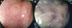 a) Magnificación de lesión polipoidea localizada en el colon sigmoides, donde se observa un patrón glandular tubular corto. b) Cromoendoscopia digital de lesión polipoidea localizada en el colon sigmoides, donde se observa un patrón vascular regular.