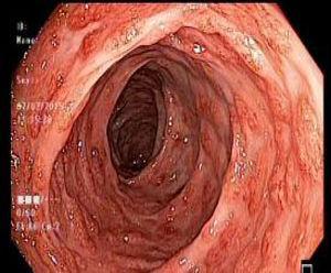 Colonoscopia: lesiones polipoides confluentes con zonas hiperémicas localizadas en el colon descendente.