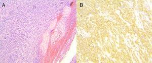 A) Muestra histológica. El espesor total de la pared gástrica fue infiltrado de forma difusa por una población de células linfoides grandes y atípicas (tinción con hematoxilina y eosina, ×1.25, ×60). B) Inmunohistoquímica: positiva para CD20.
