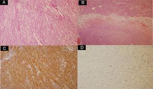 A) Proliferación de células fusiformes (H&E ×10). B) Presencia de focos de necrosis (H&E ×10). C) Inmunohistoquímica CD117+. D) Inmunohistoquímica CD34−.