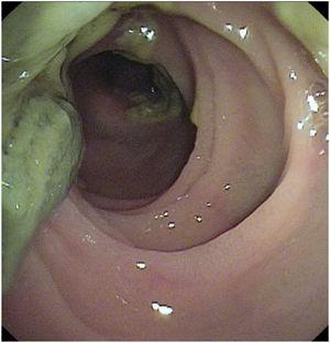 Meconio en intestino delgado en paciente postrasplante pulmonar desobstruido por enteroscopia de doble balón.