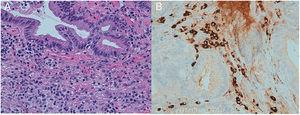A-B: biopsies of the proximal biliary duct with superficial erosions and interstitial chronic inflammatory infiltrates.