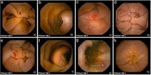 Imágenes obtenidas con cápsula endoscópica. SB2: a)angiodisplasia; b)tumor submucoso ulcerado; c)úlcera, y d)puntos rojos. SB3: e)angiodisplasia; f)tumor submucoso ulcerado; g)úlcera, y h)puntos rojos.