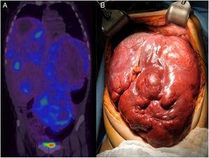 A) SPECT/CT abdominal con octreótido que muestra captación en la gran tumoración hepática. B) Vista del abdomen de la paciente al inicio del trasplante donde se observa la infiltración masiva del hígado.