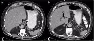a) TAC con presencia de neumatosis gástrica; se aprecia de sonda enteral adyacente a pared gástrica; b) Evidencia de gas en rama de vena porta izquierda.