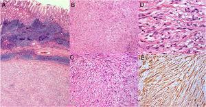 Sección del espécimen quirúrgico (×40) (A). Tumor submucoso mesenquimatoso bien definido que surge de la cubierta del plexo de Auerbach, compuesto de células fusiformes organizadas en grupos cruzados acompañados de material fibrilar hialino (B, C, D). La inmunoquímica muestra positividad a S-100 y proteína gliofibrilar ácida (E).