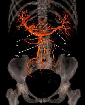Vista coronal de la reconstrucción del sistema venoso portal, esplénico y mesentérico por medio de la MD-CT con volume rendering IMV: vena mesentérica inferior; PV: vena portal; SMV: vena mesentérica superior; SV: vena esplénica.