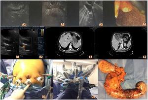 A1-A4) Imágenes de ultrasonido endoscópico. B1-B2) Ultrasonido abdominal. C1-C2) Tomografía de abdomen contrastada. D1-D2) Posicionamiento de trocares y docking del robot. E) Pieza quirúrgica.