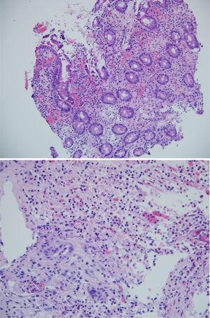 A) H & E en 200x: muestra duodeno: inflamación crónica activa. B) Imagen en 400x. Úlcera con marcado infiltrado linfoplasmocitario, sin evidencia de malignidad.