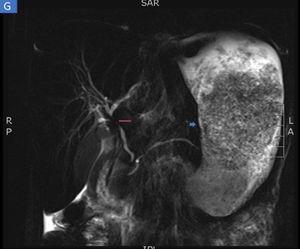 Enterorresonancia en la que se identifican severos cambios inflamatorios y engrosamiento del estómago (flecha corta). Además, de forma incidental se identifica una estenosis severa de aspecto inflamatorio en la confluencia de los hepáticos y colédoco proximal compatible con colangitis esclerosante primaria (flecha larga).