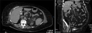 Tomografía computarizada no contrastada de abdomen, corte axial y coronal. Se demuestra lito intravesicular.