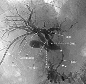 Colangiografía con conductos biliares dilatados y una variante anatómica: rama anterior del conducto hepático derecho (AB-RHD), rama posterior del conducto hepático derecho (PB-RHD), conducto cístico (CD), conducto hepático izquierdo (LHD), conducto hepático común (CHD), conducto biliar común (CBD).