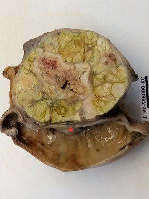 Imagen macroscópica del hepatocarcinoma, en donde se observa la parte distal del estómago, involucrando la pared y la mucosa de la curvatura menor del estómago (?).