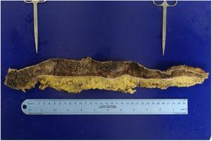 Colon macroscópico diseccionado. Ambas estenosis están indicadas por los forceps de metal en el colon transverso y descendente respectivamente.