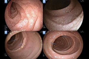 A) Atrofia segmentaria en duodeno distal. B) Cambios de atrofia severa homogénea en yeyuno. C y D) Adelgazamiento de la mucosa en yeyuno medio con presencia de ulceraciones superficiales recubiertas de fibrina en parches (flechas azules).