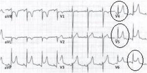 Electrocardiograma que muestra elevación del segmento ST de forma difusa en las derivaciones cardíacas precordiales.