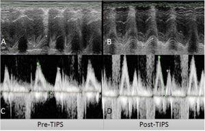 Derivación portosistémica trasyugular intrahepática (TIPS) (A y C) y medidas de ecocardiograma post-TIPS (B, D). A) TAPSE pre-TIPS de 18.8mm B) TAPSE post-TIPS TAPSE de 14.4mm C) Relación de onda E/A pre-TIPS E/A de 1.2. D) Relación de onda E/A post-TIPS de 1.54. TAPSE: excursión sistólica de plano anular tricúspide.