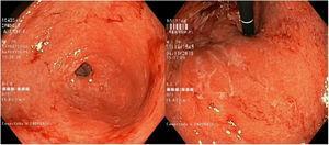 La esofagogastroduodenoscopía muestra exudaciones de mucosa gruesas con congestión difusa, edema y eritema, al igual que atrofia gástrica.