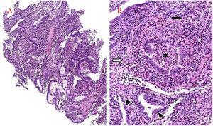 A) La biopsia gástrica muestra marcada distorsión arquitectónica secundaria a la presencia de infiltración inflamatoria densa dentro de la lámina propia (H&E×100). B) La infiltración inflamatoria se compone principalmente de neutrófilos (flecha negra) pero también hay presentes eosinófilos (flecha blanca). La criptitis (puntas de flecha) y los abscesos de cripta (asterisco) son prominentes (H&E×200).