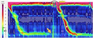 Trazado postprandial de manometría esofágica de alta resolución sin impedancia. Se observa contracción gástrica sobre 30mmHg (onda R) (flecha), apertura de esfínter superior (óvalo) y deglución secundaria (*) en conjunto con síntoma (**) referido por paciente.